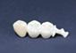 ブリッジ(3歯)メタルボンド or ジルコニア